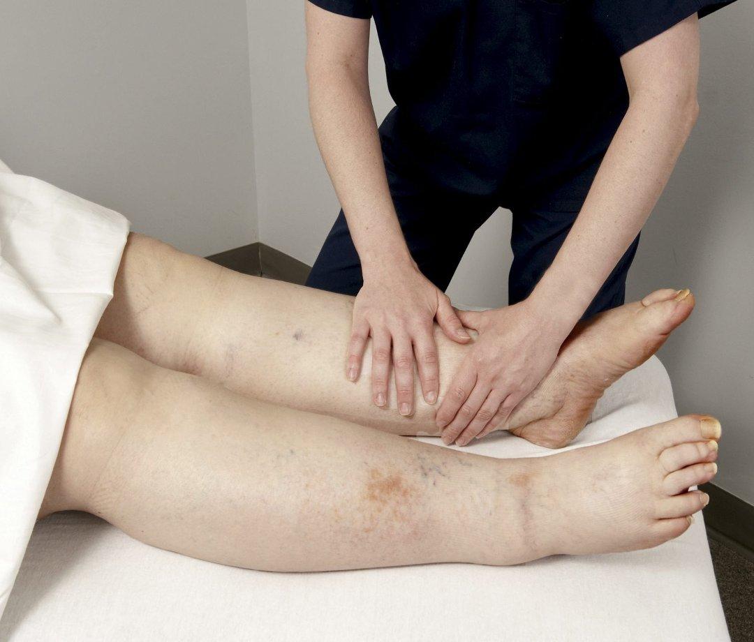 Linfedema tratamiento Barcelona Limfoclinic